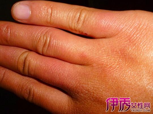 【图】手冻了的简单治疗方法 小妙招缓解冻疮痛苦