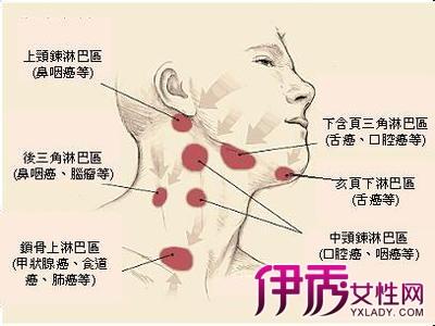 如何进行浅表淋巴结检查 一大主力帮你抓出病徵