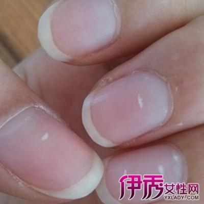 指甲很易受到伤害,譬如手指卡在门缝里