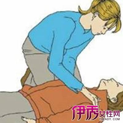 【徒手心肺复苏的步骤】【图】徒手心肺复苏的步骤有