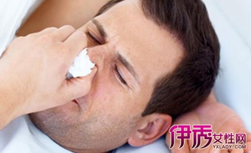 鼻腔周围面颅骨的含气空腔;左右 因其解剖特点各窦可单独发病,也