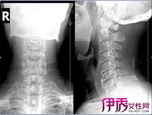 项韧带钙化是什么病 盘点它的症状有哪些