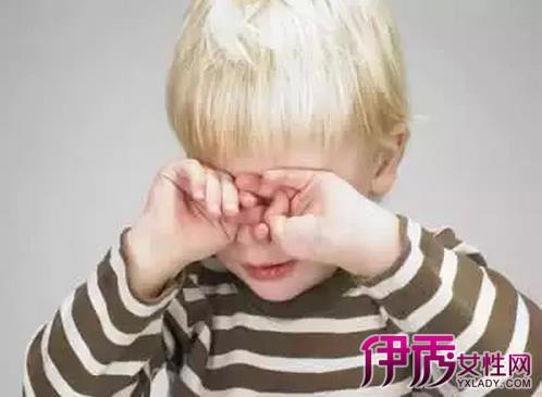 眼周围发红发痒是怎么回事? 眼周围皮肤红痒是
