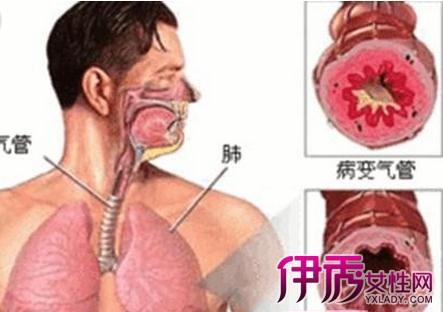 【慢性支气管炎怎样治疗】【图】慢性支气管炎怎样治疗 4大方案助您早日摆脱疾病_伊秀健康|yxlady.com
