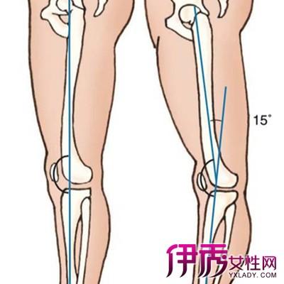 【膝关节骨质增生秘方】【图】膝关节骨质增生