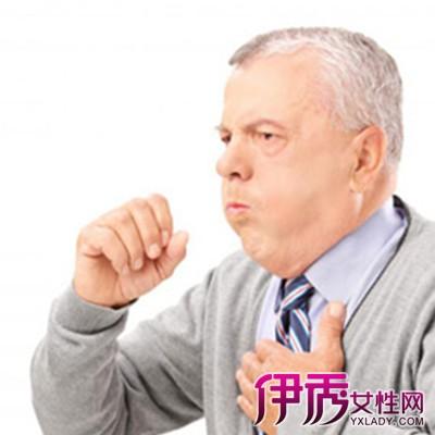 【成人过敏性咳嗽怎么治疗】【图】成人过敏性
