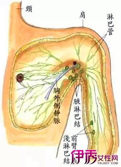 腋下淋巴结节怎么办 会出现哪些症状