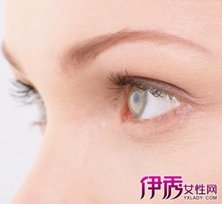 【眼珠子发黄是怎么回事】【图】眼珠子发黄是