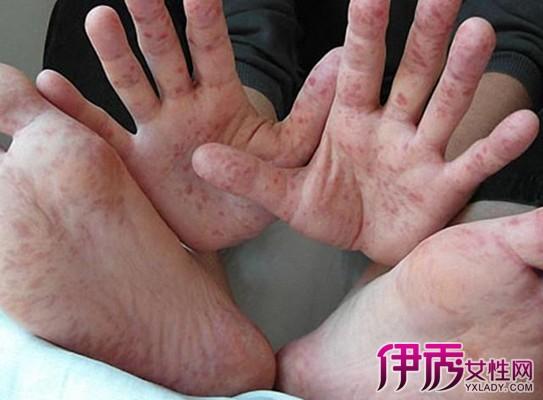 【图】手足口病的治疗方法介绍 5款食疗方治帮你搞定