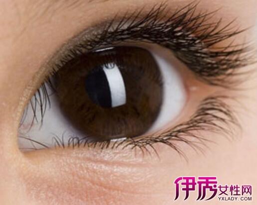 【图】睫毛痒是什么原因 3个方法舒缓睫毛痒的问题