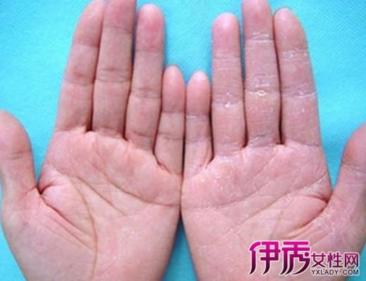 【图】手足皲裂怎么治疗  手脚皲裂的中医外治保健方给你
