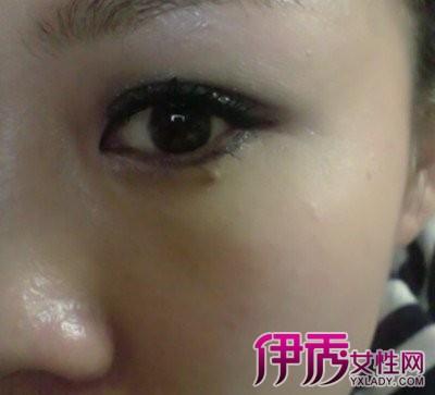 眼睛下面的痣